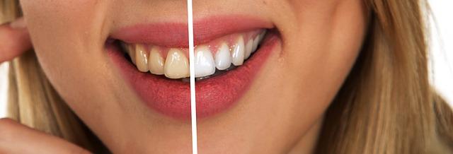 odstín zubů